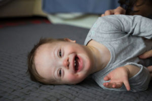 A baby boy with down syndrome